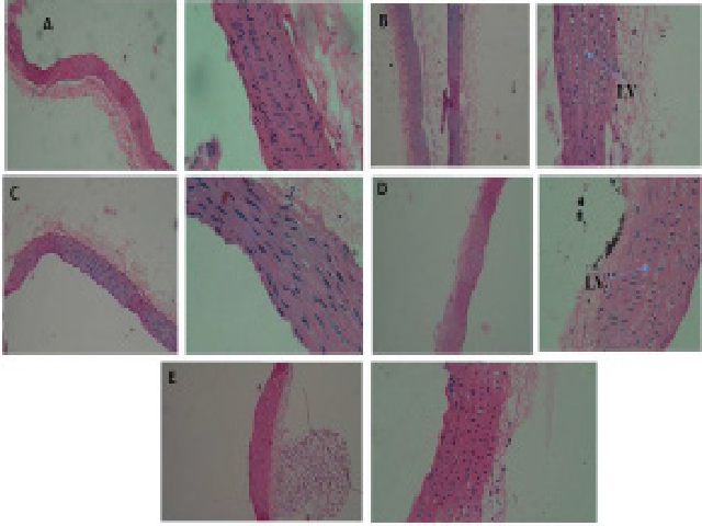 Histopathology sections of thoracic aorta: A. Normal rats