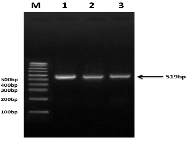 Image showing the iceA1 gene amplification separated on 1% agarose gel