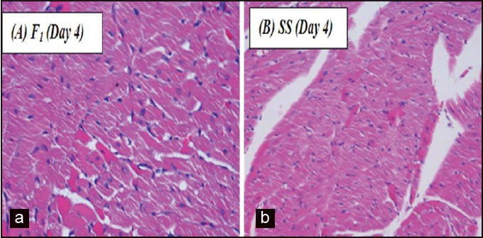 Microscopic appearance of burned skin on the 4th day. (a) F1 treated (hematoxylin and eosin (H and E), 400×) area of wound showing coagulative necrosis. The cells show dense wavy cytoplasm and pyknotic cells. (b) (SS) treated (H and E, 400×) wounded area showing subcutaneous tissue and muscle showing necrotic cells with pink cytoplasm and scanty nuclei