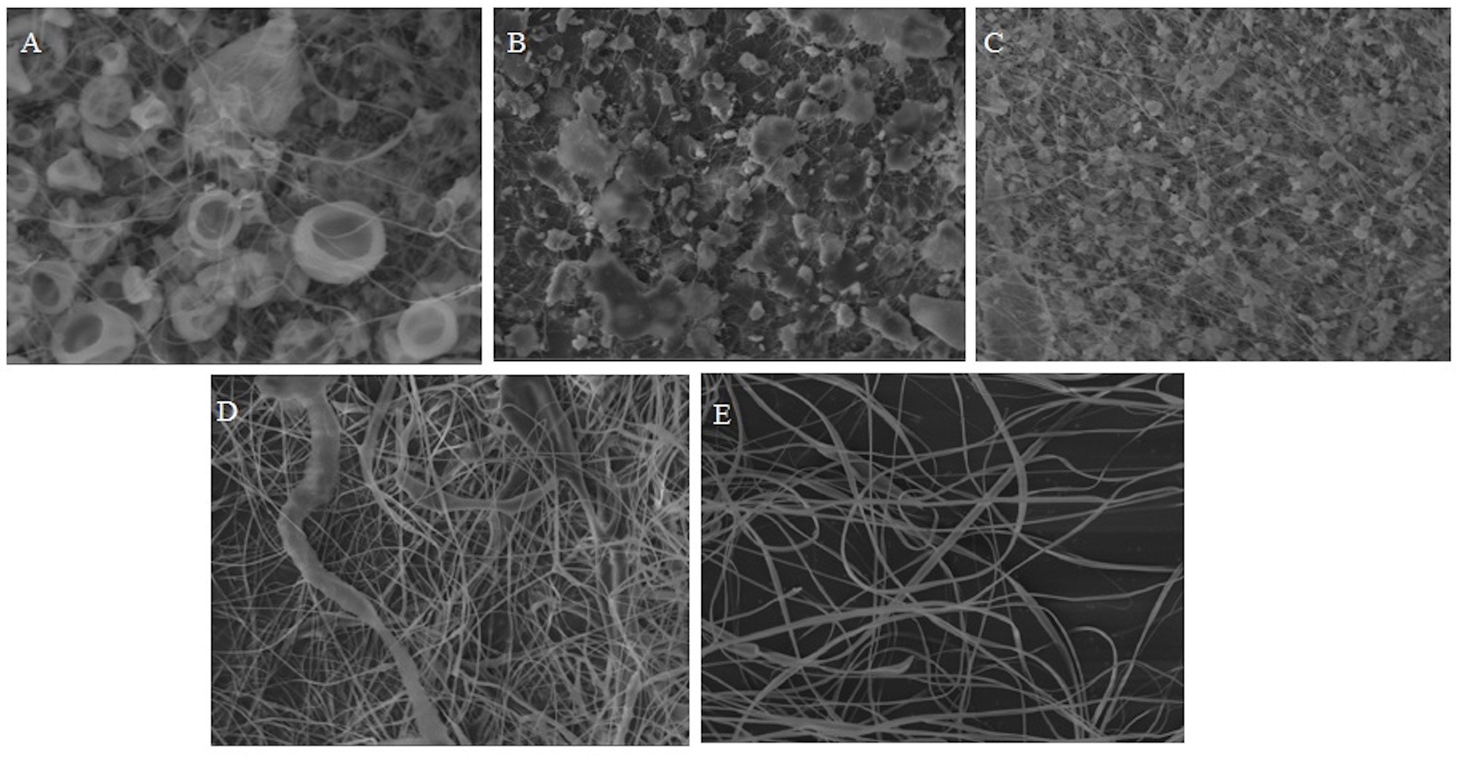 Figure 1: Scanning electron micrographs of cellulose acetate of 10% CA electrospun fibers prepared in different acetone/acetic acid at ratio of (A) 1:9; (B) 3:7; (C) 5:5; (D) 7:3; (E) 9:1.